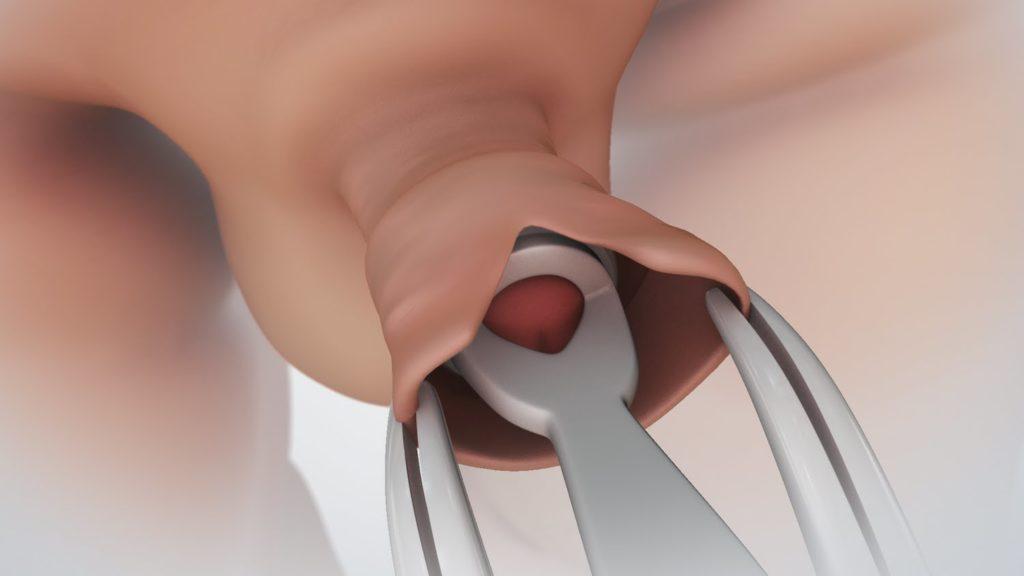 nem érzékeny pénisz