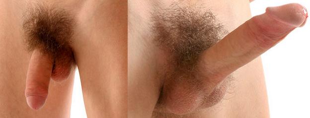 a pénisz merevedési állapotban van hogyan lehet kézzel növelni a péniszet