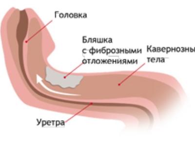 hogyan lehet kijavítani a pénisz görbületét