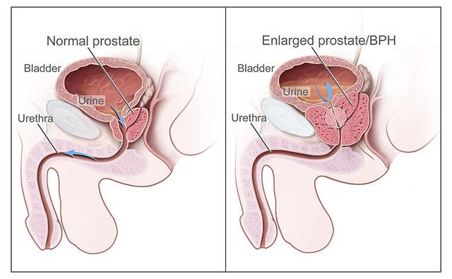 a pénisz szerkezete és megnagyobbodása