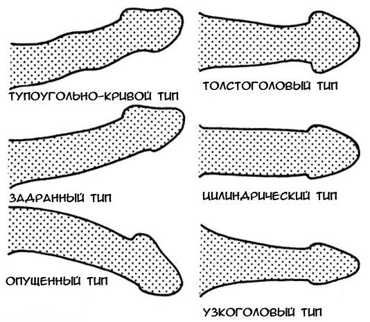 méretek átmérőjű péniszek az erekció hirtelen eltűnik