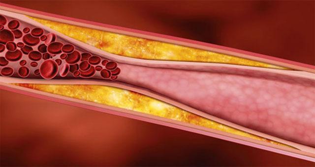 fokhagymás tinktúra az erekcióhoz