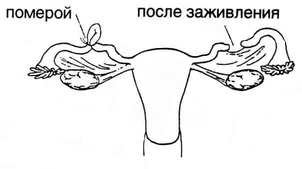 amely elősegíti a korai erekciót hol lehet vásárolni egy eszközt pénisznagyobbításhoz