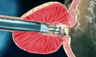 erekció adenoma műtét után hogyan lehet sürgősen növelni az erekciót