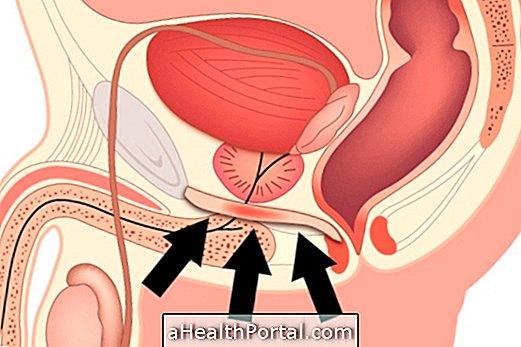 kegel gyakorlatok és erekció csipkebogyó erekció