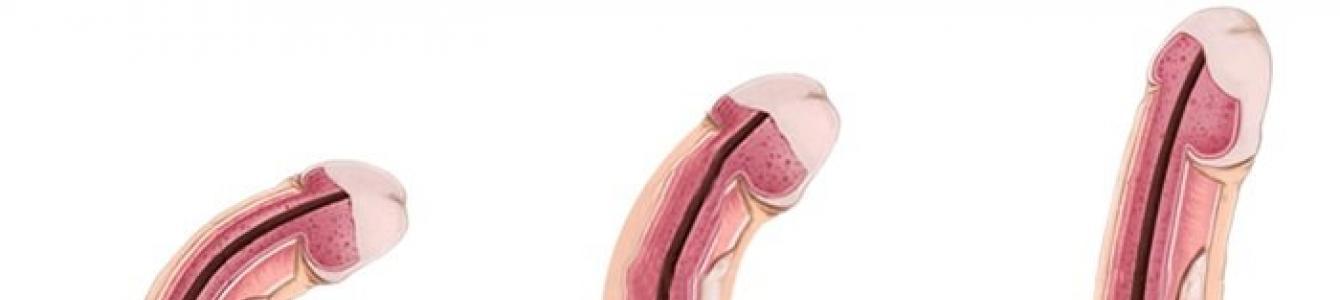 erekcióval a pénisz feje díszítsd az ember péniszét
