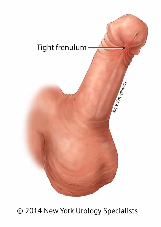 Frenulum breve penis