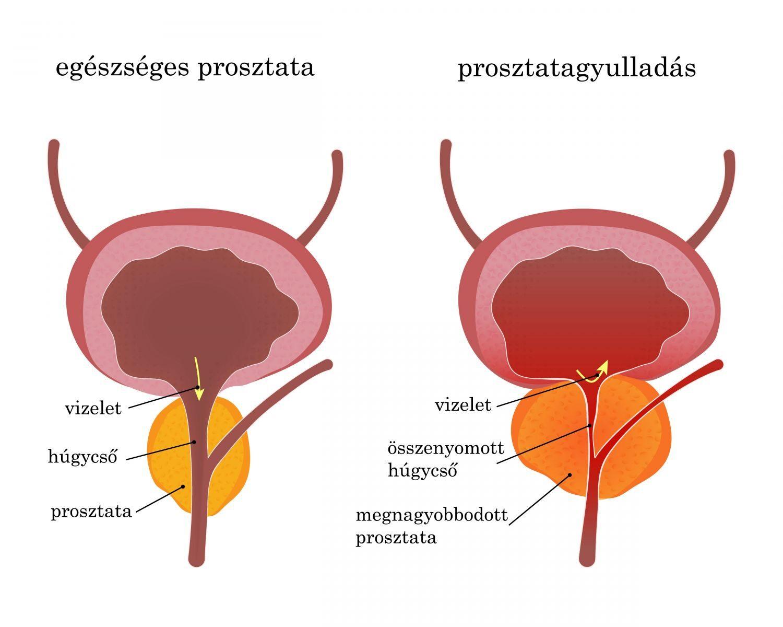prosztatagyulladás merevedési problémája