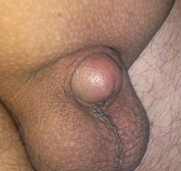 Túl merev pénisz - Urológiai megbetegedések