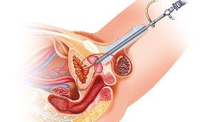 erekciós prosztata műtét