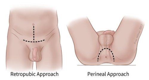 Férfi fájdalom a perineumban - - Bőrgyulladás