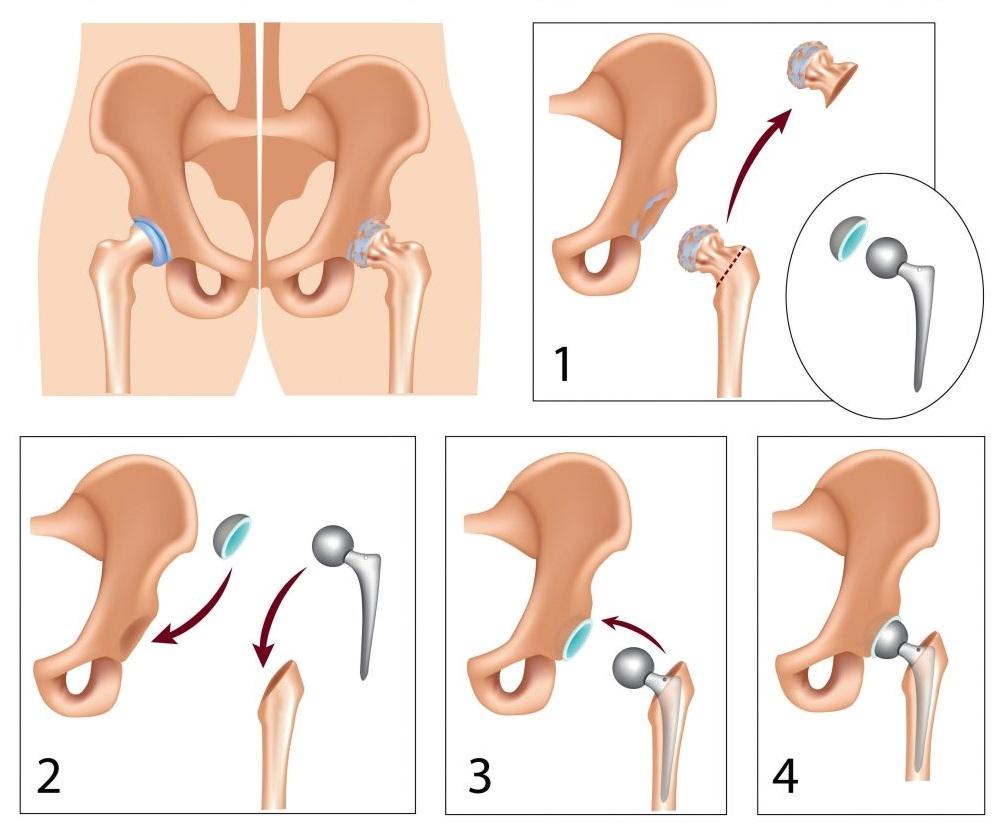 Mennyibe kerül egy pénisz nagyobbító műtét?