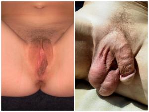 mi a női pénisz