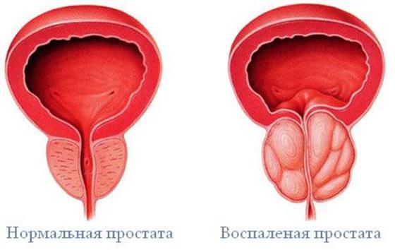 nincs erekció a férfiaknál, mit kell tenni