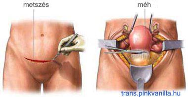 thrombophlebitis a péniszben