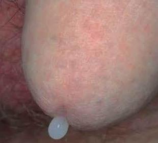 A gonorrhoea tünetei férfiaknál