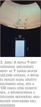 Orvos válaszol: Potenciazavar, 4. oldal
