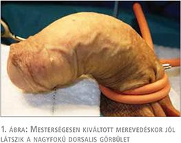Hímvesszőgörbület-péniszgörbület (IPP) diagnózisa és kezelése!