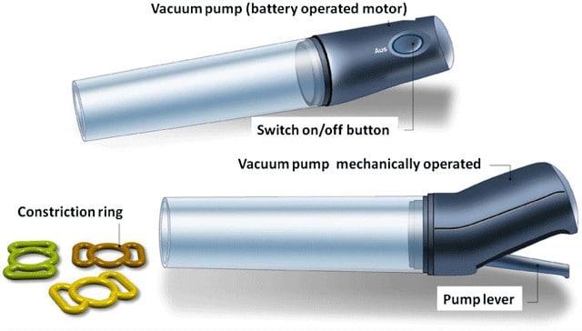 Péniszpumpák, potencia pumpák