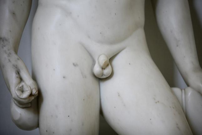 a pénisz növelése orvosok nélkül