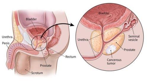 a prosztata erekciója hogyan lehet meghosszabbítani a nemi közösülést és erősíteni az erekciót