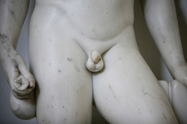 a pénisz felemelkedik, de gyorsan leesik mit kell tenni, ha egy merevedés eltűnik