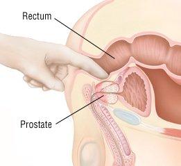 Mi a Prostatitis kezelése? | Marianna Durova