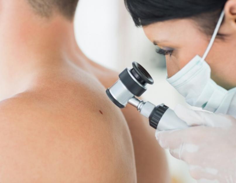 Atópiás dermatitisz - endogén ekcéma