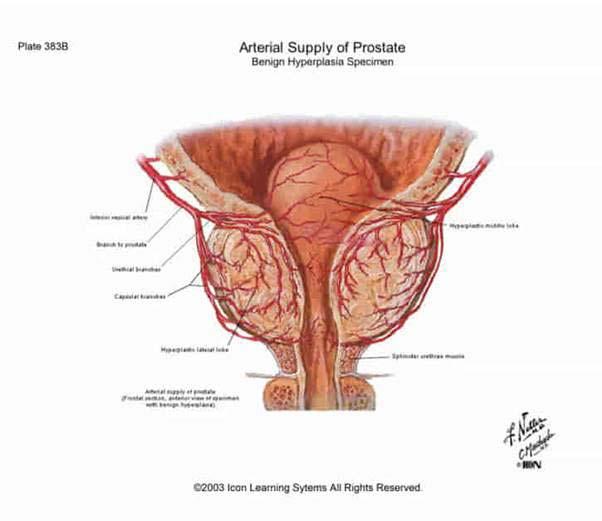 erekció helyreállítása videó a pénisz görbülete nem patológia