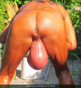 Csomó a pénisz tövében, eltűnő here